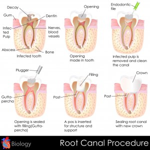 root canals preserve teeth