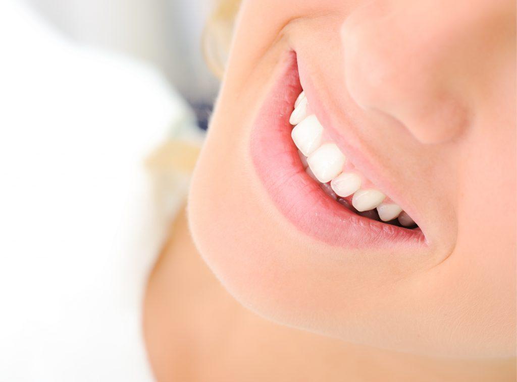 whitening teeth, bleachorexia, Dr. Haslam, Billings dentist