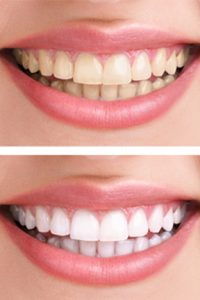 Best teeth whitening in Billings