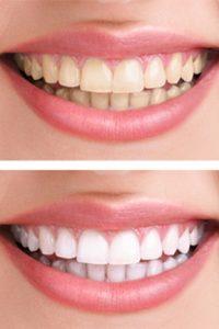 Best teeth whitening in Billings